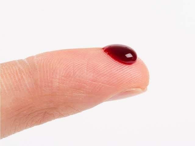 हिमोफिलिया-रक्तस्त्राव होणारा आनुवंशिकआजार – डॉ.अलोक कदम